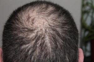 Haarausfall bei mangel von Vitamine und Mineralstoffe